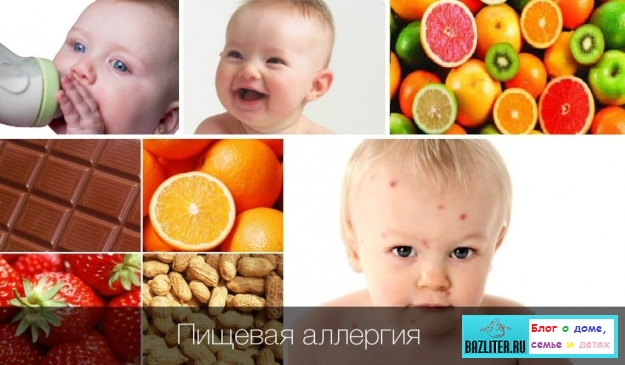 bazliter.ru, allergy, child, allergy child, symptoms, causes, signs of allergy, allergy in a baby, children, allergy in a child, the right ways to fight, allergy in a child, laryngitis, rhinitis, eczema, bronchitis, faq, video, photo, review